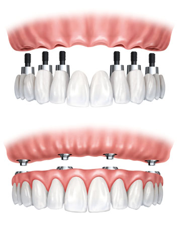 Implant-Supported Full and Partial Dentures